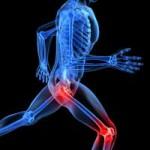Leg Pain Sciatica