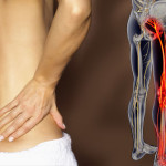 What is this Sciatica thing?